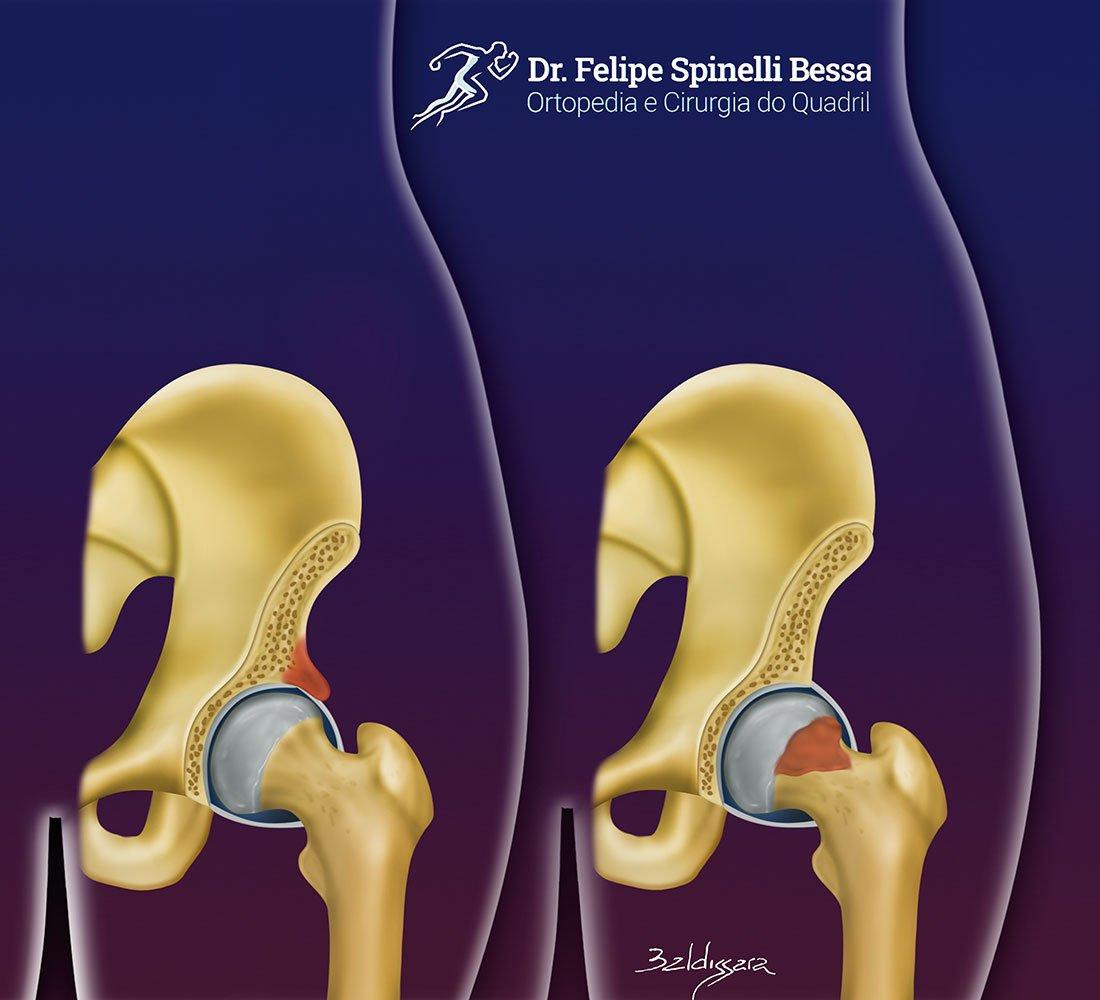 Impacto Femoro-acetabular | Dr Felipe Bessa