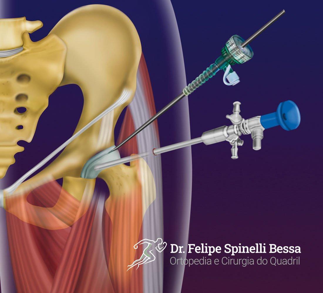 Artroscopia De Quadril | Dr. Felipe Bessa