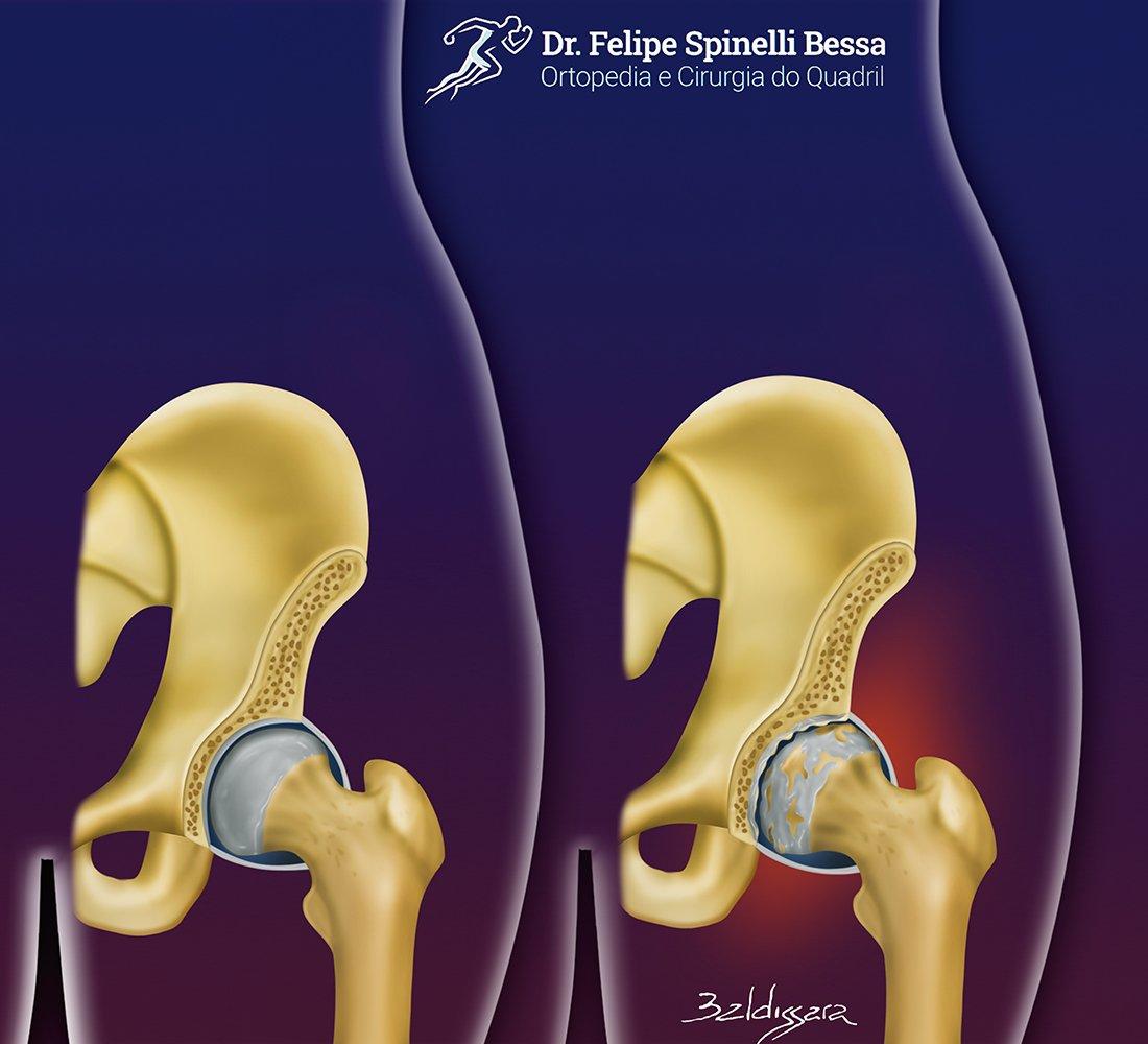 Artrose Do Quadril | Dr. Felipe Bessa