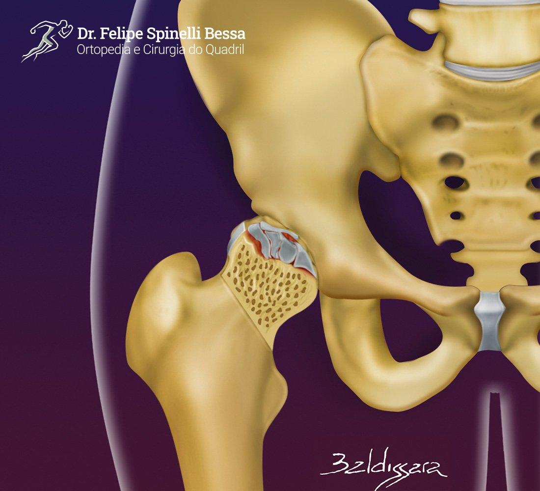 Osteonecrose Da Cabeça Do Fêmur | Dr. Felipe Bessa